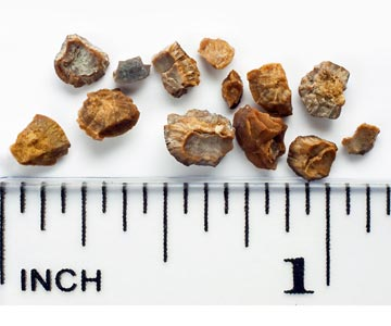 Kidney stones after removal.